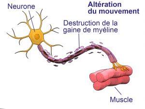 images2sclerose-en-plaques-2.jpg
